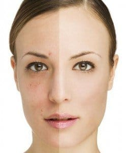 tratamiento acné hormonal
