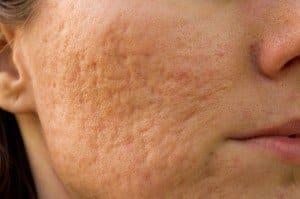 tratamiento cicatrices acné