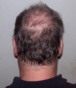 Alopecia androgenetica 1