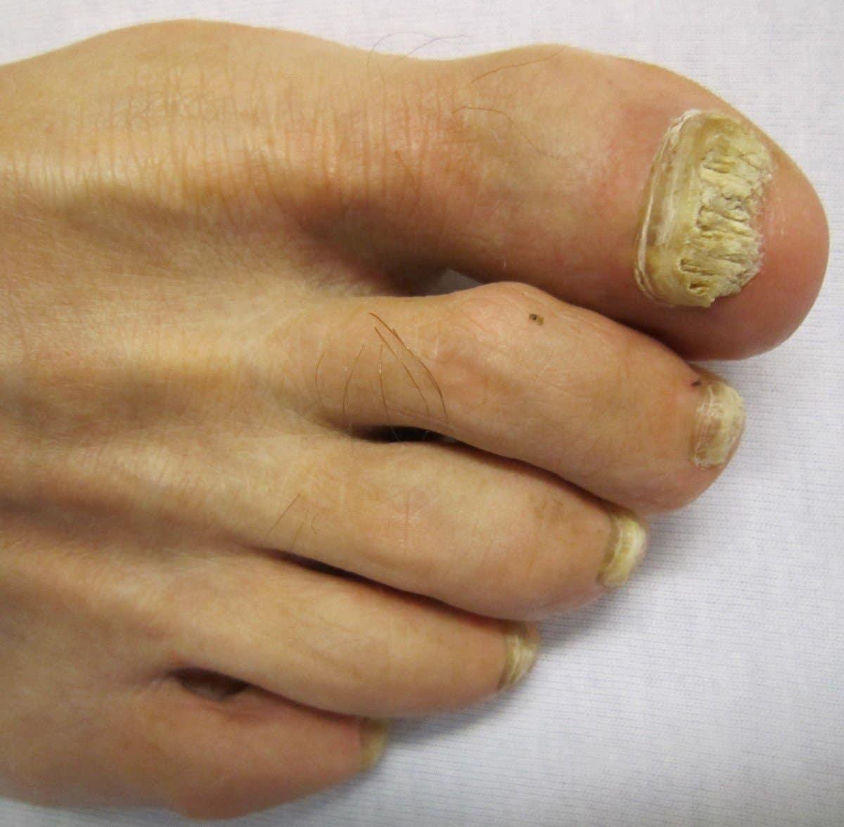 Teresa Conde. Dermatólogo en Bilbao | Hongos en piel y uñas